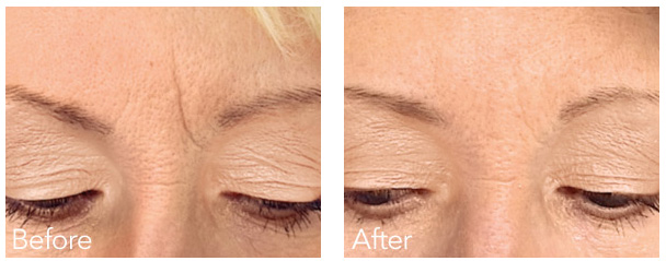 Belotero is a new dermal filler