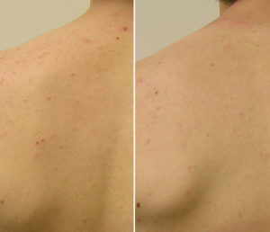 Egea Spa - Advanced Skin Care: HydraFacial - Back Acne Before & After Treatment