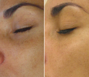 Egea Spa - Advanced Skin Care: HydraFacial - Hyperpigmentation Before & After Treatment