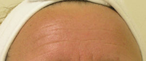Advanced Skin Care: HydraFacial - Wrinkles After Treatment